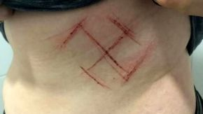 Nota de advogada questiona conteúdo da entrevista sobre caso da Suástica tatuada no corpo da mulher em PortoAlegre
