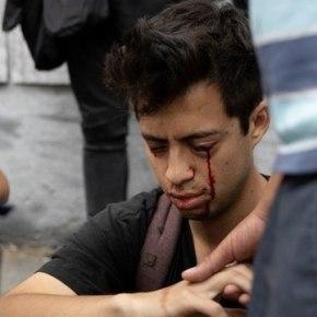 Balas que cegaram jovens e trabalhadores chilenos, foram fabricadas noBrasil
