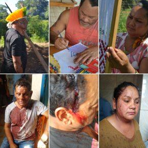 Agro é Pop…e criminoso!!! Agronegócio e Omissão do Governo provocam Violência e Assassinatos de Indígenas Kaingang no RS : Arrendamentos daMorte!